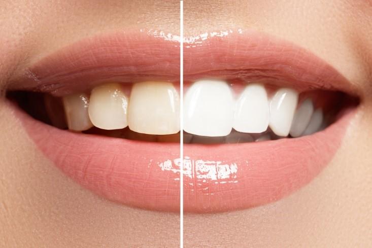 Tips Memilih Produk Pemutih Gigi